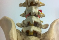 Spinal Cord Stimulation for the Management of Pain. Recommendations for Best Clinical Practice
