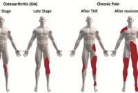 Chronic Postoperative Pain After Joint Replacement